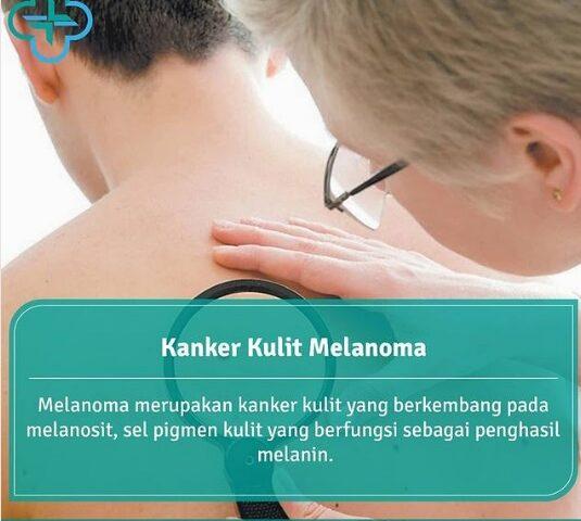 Kanker Kulit Melanoma