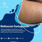 Apa Itu Molluscum Contagiosum