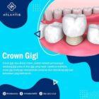 Crown Gigi