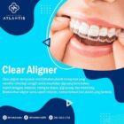 Manfaat Clear Aligner