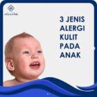 3 Jenis Alergi Kulit Pada Anak