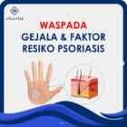 Waspada Gejala dan Faktor Resiko Psoriasis